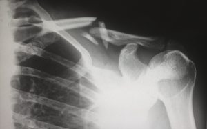 X-ray of a human shoulder blade with a broken bone.